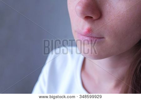 Herpes Virus On Human Lips. Woman With Herpes Sore On Lip Mouth, Closeup View. Process Of Dehydratio