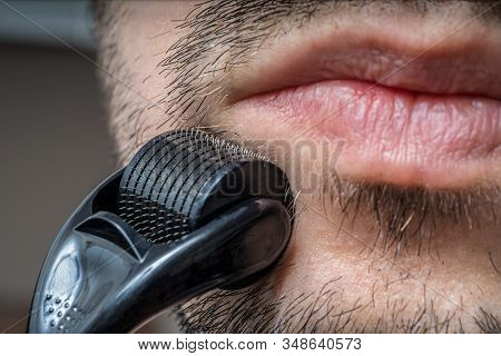 Facial Hair Care Concept. Young Man Is Using Derma Roller  On Beard.