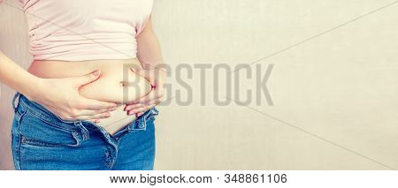 The Concept Of Overweight, Weight Loss, Diet, Obesity, Junk Food. Woman In Unbuttoned Trousers Holds