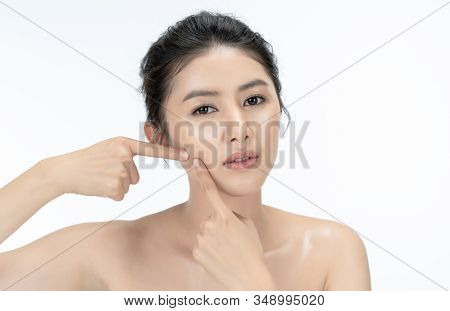 Skin Problem Face. Beautiful Young Asian Woman Unhappy Is Squeezing Pimples On Her Face Skin. Acne,