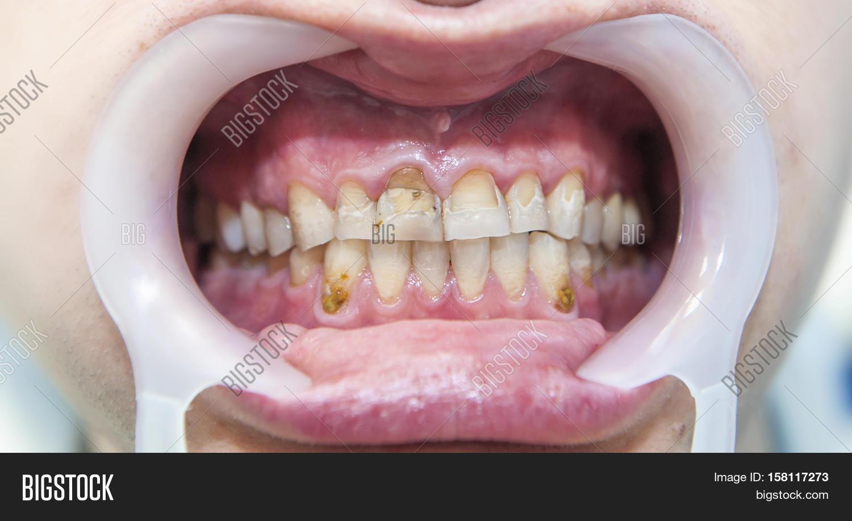 Dental Fluorosis ( Image & Photo (Free Trial) | Bigstock