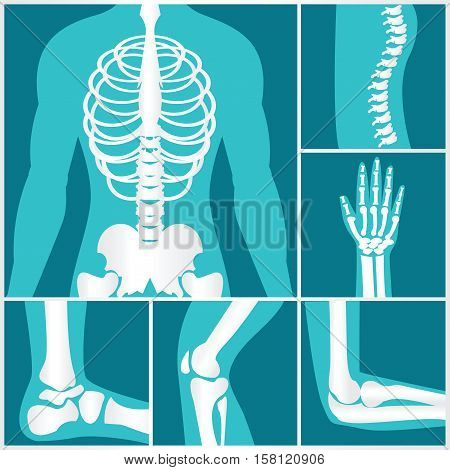 Set of xray of human skeletal human joints knee joint elbow joint ankle joint wrist skeletal spinal bone structure of Human Spine emblem or sign of medical diagnostic center or clinic flat vector illustration.