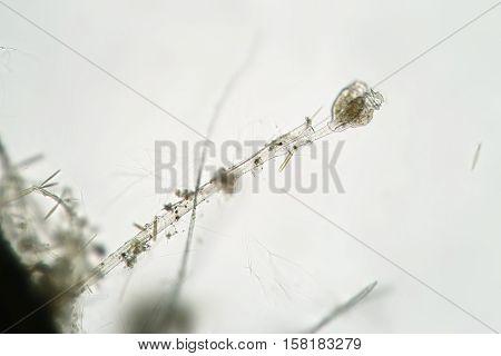 Freshwater Ciliophora Ciliata Vorticella colonia. Microorganisms by microscope. Macro