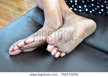 60 year foot Asian woman with cracked soles.