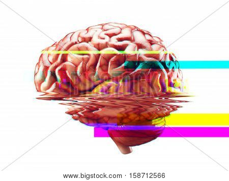 Realistic 3d Illustration of human brain failure concept with glitch effect