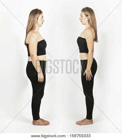 Photo before and after weight loss. The girl in the profile.