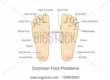 Common foot problems. Illustration about disease and abnormality of human foot.