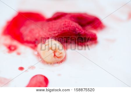 Macro detail of a pulled wisdom tooth in a sink with bloody saliva and gauze in the background. Dental procedures concept.