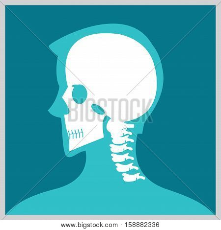 Xray of head and neck the joints and boneshuman joints skeletal spinal bone structure of Human Spine medical health care flat vector illustration.