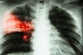 Lobar pneumonia . film chest x-ray show alveolar infiltration at right middle lobe due to tuberculosis infection . poster