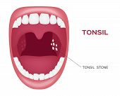 normal tonsil , tonsil stone in the mouth vector poster