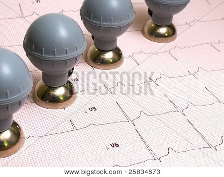 ECG balloon chest electrodes with ECG record on paper as background