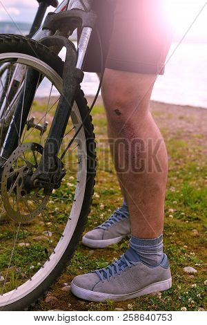 A Cyclist With A Wound On His Leg Close-up. Legs Of The Cyclist