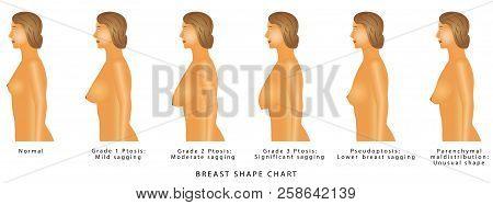 Breast Shape Chart  Vector & Photo (Free Trial) | Bigstock
