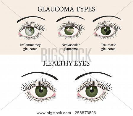 Eye Disease. Ophthalmology Health. Glaucoma Types Ans Healthy Eye. Vector Flat Eye Healt Illustratio