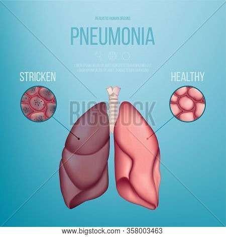 Image Of A Healthy Lung And A Lung Affected By Pneumonia. Vector Illustration. A Coronavirus That Ca