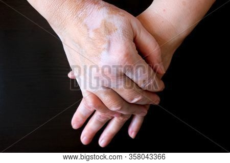 Womans Hands Folded. The Skin Is Stained With Vitiligo. Vitiligo On The Hands Of A Woman Aged.