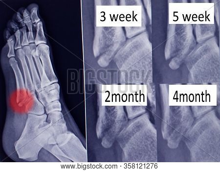 X -ray  Foot Bone Fracture ( Base Of Metatarsal Fracture ) From Traumatic Injury And Step View Union