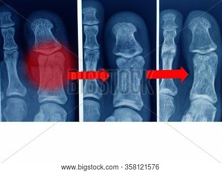 X-ray Fracture At Big Toe And Step View Union Fracture.