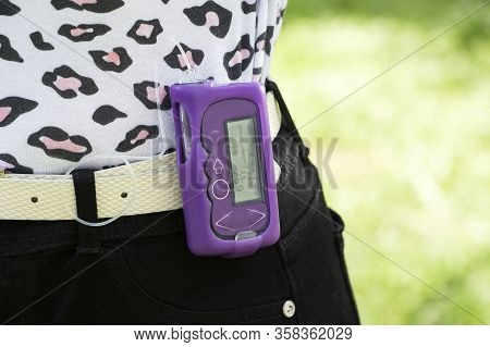Diabetic Girl With An Insulin Pump Connected To Her Leg