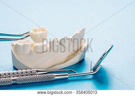 Closeup / Prosthodontics Or Prosthetic / Single Teeth Crown And Bridge Equipment And Model Express F