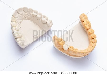On A White Background Are Plaster Models Of The Jaws With A Ceramic Crown Made On A Molar. White Art