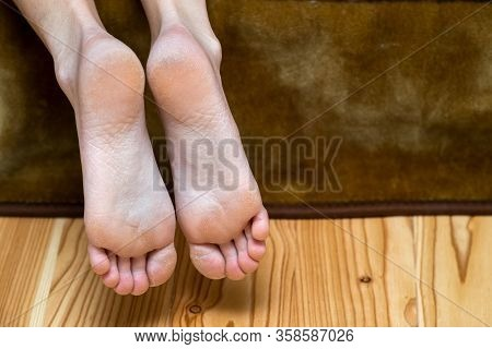 Closeup Of Woman Feet Sole With Dry Cracked Skin. Foot And Toes Care Concept.