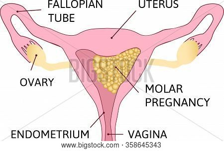 Molar Pregnancy, Abnormal Form Of Pregnancy. Colored Image, White Background.