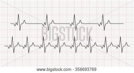 Cardiogram. Heart Beat. Heartbeat Line. Electrocardiogram. Vector