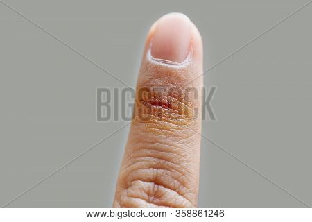 Cut Wound Finger Injury From Accident And First Aid By Antiseptic Solution On Grey Background, Selec