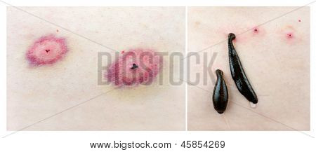 Medical leeches and traces its bite