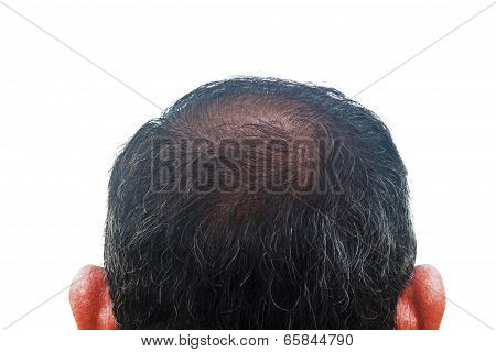 Hair Loss And Regeneration, Asian Man 55 Years Old.