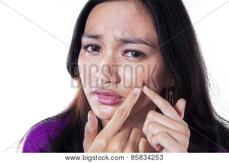 Young Girl Cleaning Pimple On Her Face