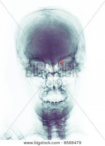 skull x-ray of a 73 year old woman who was shot in the right eye with a pellet gun. The pellet can be seen within the orbit of the eye. poster