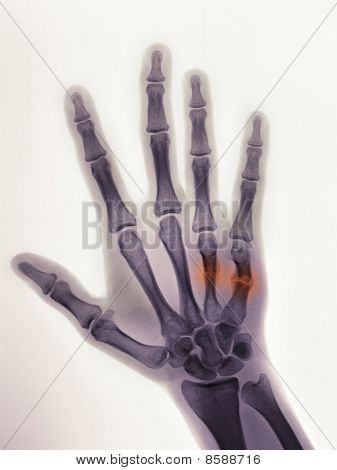 Hand X-ray Of A 19 Year Old Male Showing A Healing Boxer's Fracture With Angulated 4Rth And 5Th Meta
