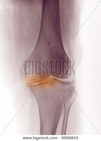 X-ray Of The Knee Of A 83 Year Old Woman Showing Degenerative Arthritis.