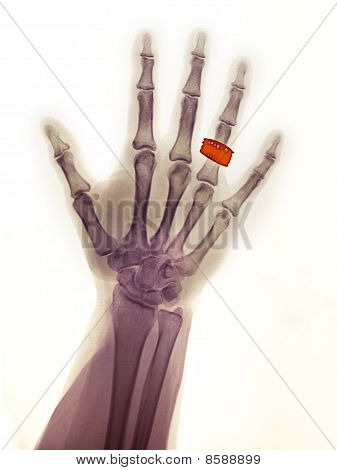 Normal Hand X-ray Of A 55 Year Old Female Wearing A Wedding Ring