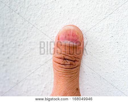 closeup a hand nails having fungus infection