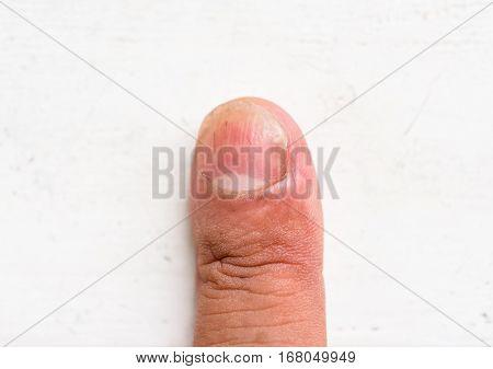 closeup nails having fungus on white background