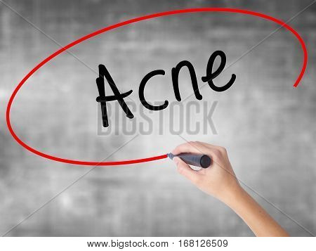 Woman Hand Writing Acne With Black Marker Over Transparent Board