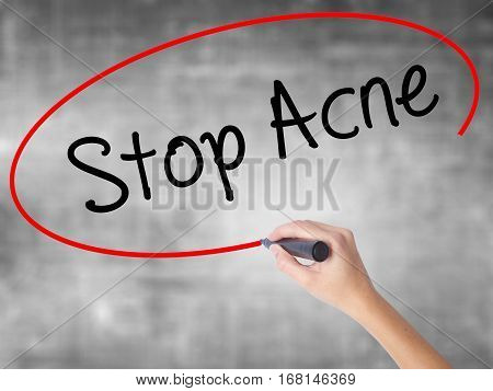 Woman Hand Writing Stop Acne  With Black Marker Over Transparent Board.