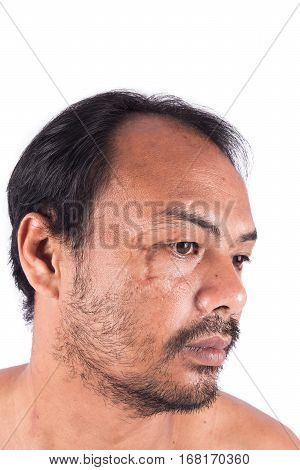 Stitch scars on young man's face, white background