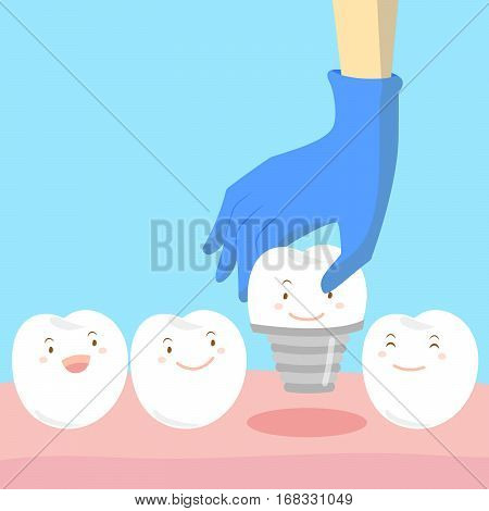 cartoon doctor hand is picking tooth implant