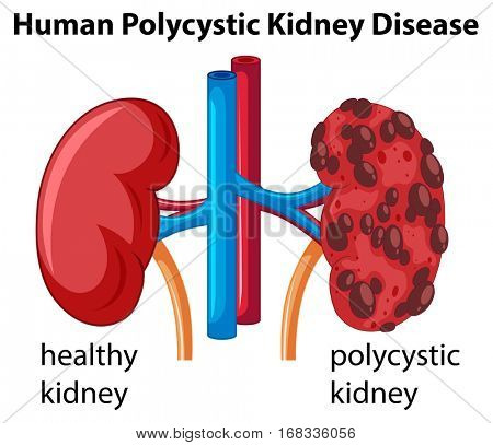 Diagram showing human polycystic kidney disease illustration
