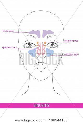 nasal sinus. inflammation. illustration hand drawn scheme face
