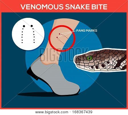 Venomous snake bite in the leg. Snakebite. Beware of snakes. Flat vector illustrations