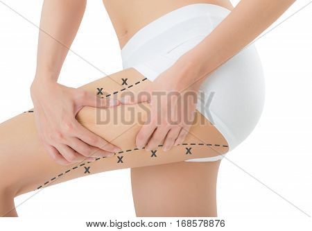 woman grabbing skin on her thigh with the black color crosses marking Lose weight and liposuction cellulite removal concept Isolated on white background.