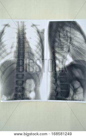 X-ray of a human spine - scoliosis diagnosis delivered by the expert