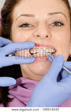 Transparent Ceramic Braces