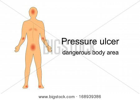 vector illustration of the most common places for bedsores. on the human body